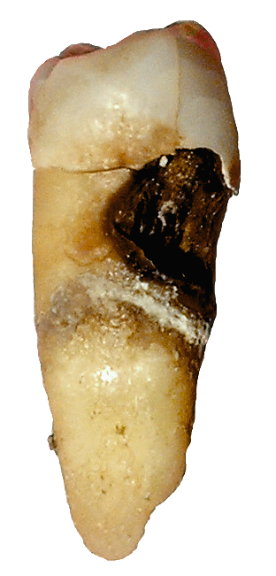 Image of tooth decay - by Dozenist (original) — Lycaon (this one) - from Wikimedia Commons